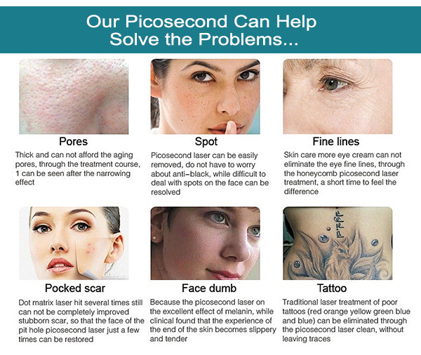 SW-P755 Picosecond laser picosure cynosure laser machine for all kinds of skin colors