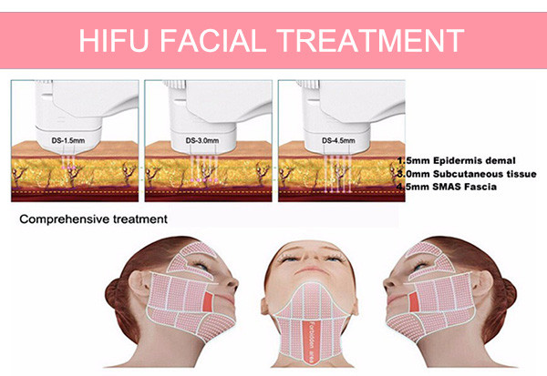 SW-161B home use protable HIFU face lifting body slimming wrinkle removal machine with 5 cartridges
