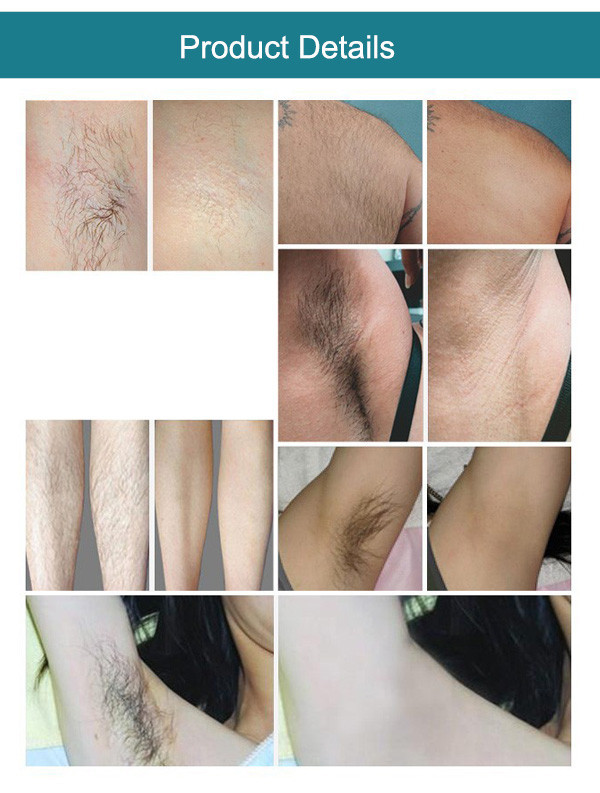 SW-808E-10 808 diode laser system arms hair removal hair epilator remove chest hair beauty equipment
