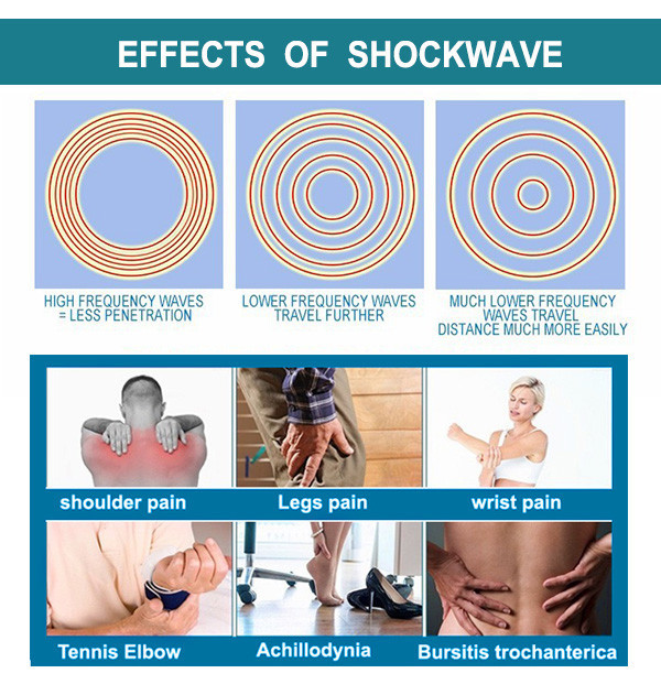 SW9 Professional shockwave therapy relief pain machine physical therapy device